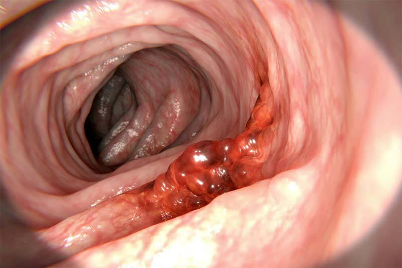 A tumour growing on the gastrointestinal wall.